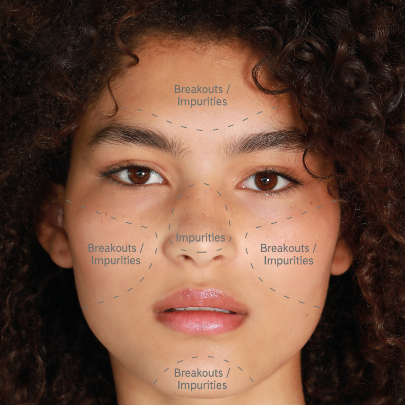 typical symptoms of oily skin include shiny t zone, larger pores, outbreaks and spots.