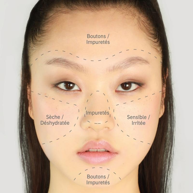 Les symptômes typiques d'une peau mixte sont une zone T grasse avec de possibles boutons et points noirs, mais des joues sèches et déshydratées.