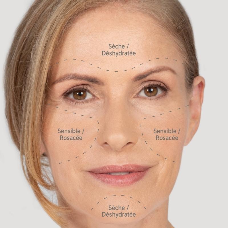 Les symptômes typiques d'une peau sèche sont une peau tendue et inconfortable avec d'éventuelles sensibilités et de la rosacée.