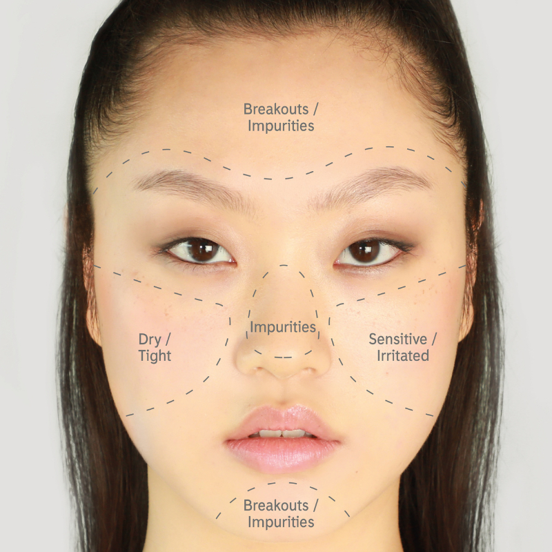 Combination skin usually has an oily t zone with possible outbreaks of spots and blackheads but cheeks which are dry and dehydrated