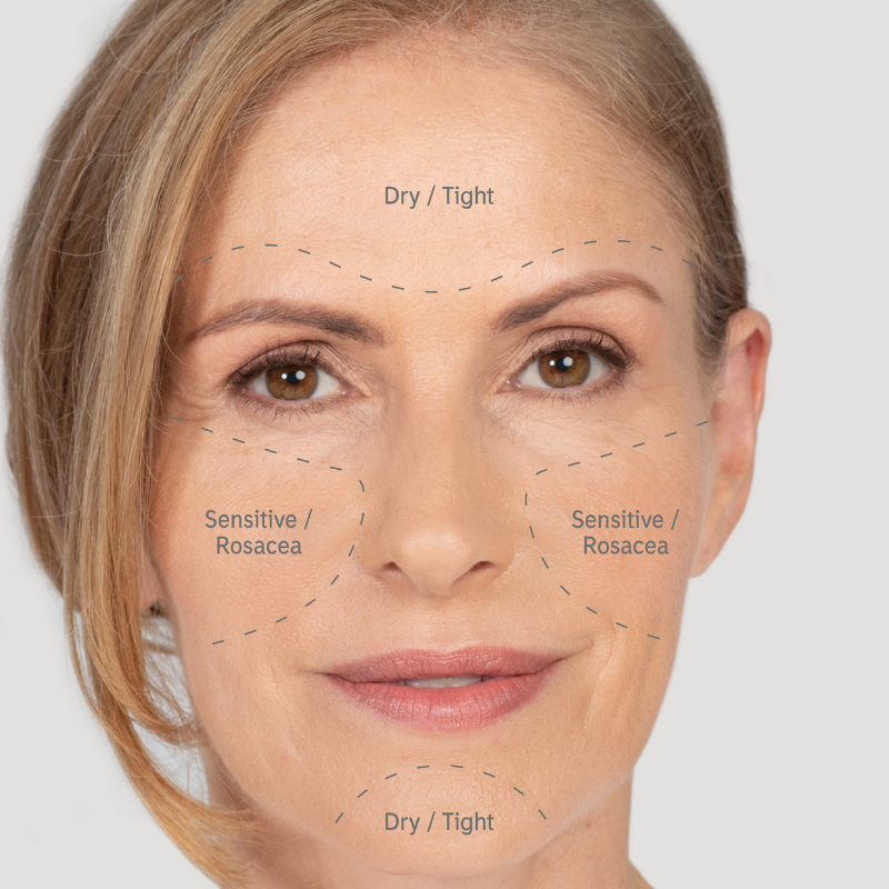 Typical symptoms of dry skin include tight uncomfortable skin with possible sensitivities and rosacea.